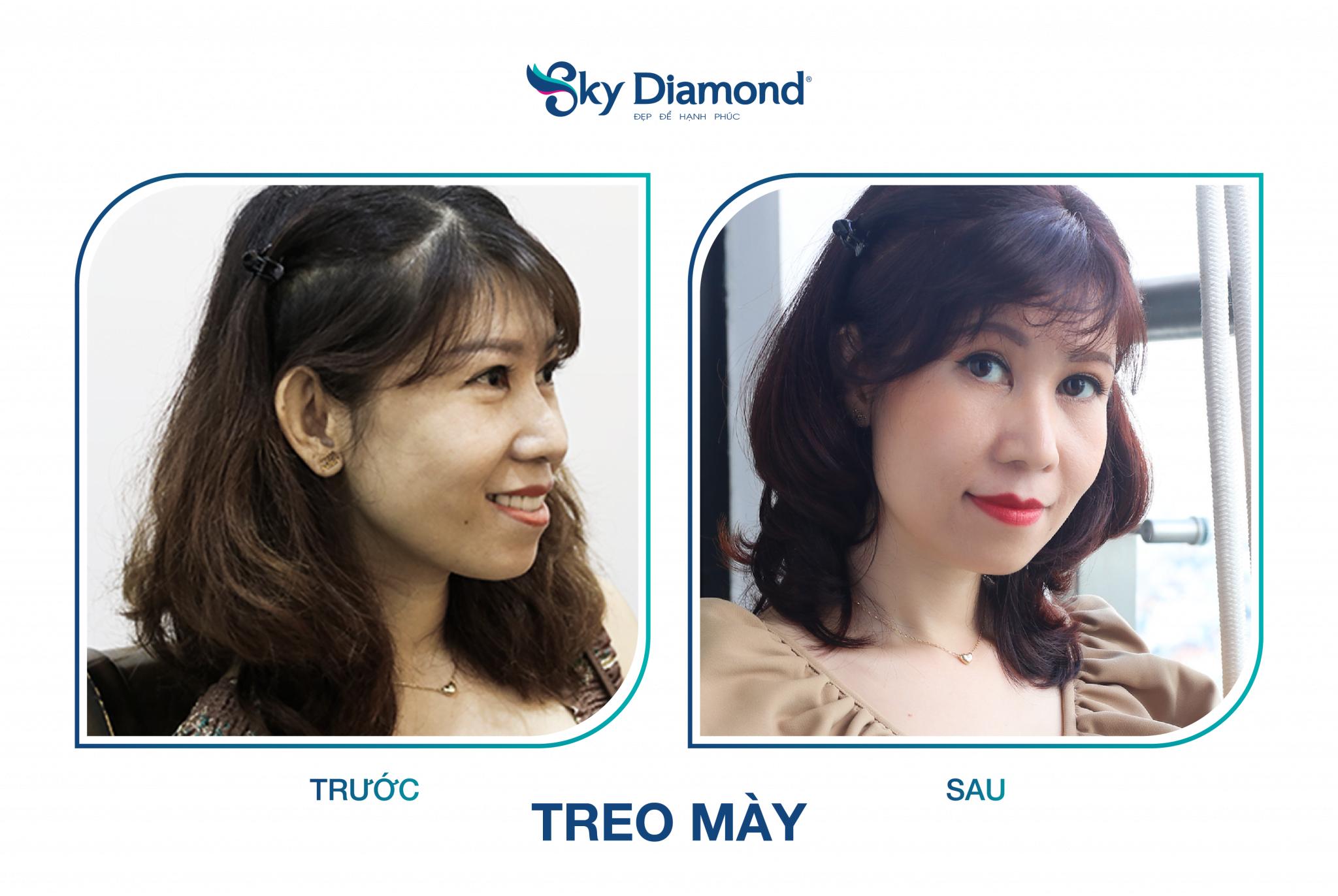 Treo may Myome