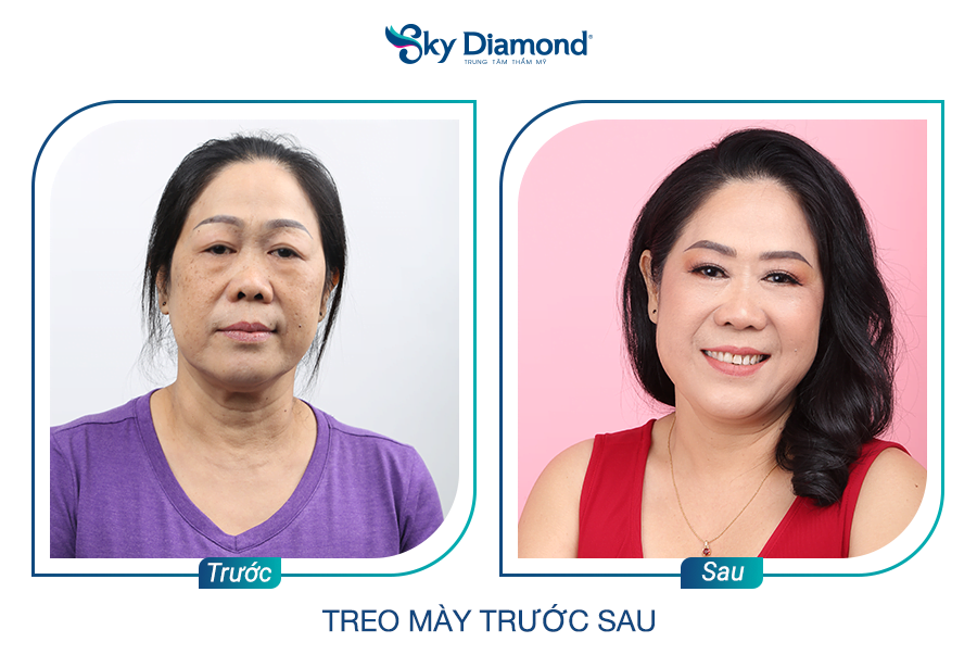 treo-may-co-vinh-hao