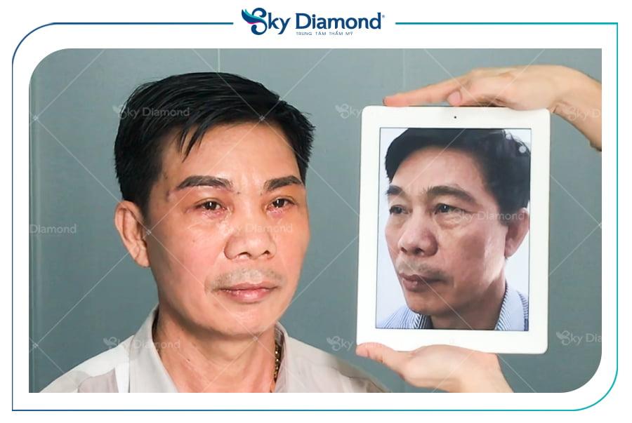 Chú Tám đã thực hiện treo mày cải thiện thị lực thành công tại Sky Diamond
