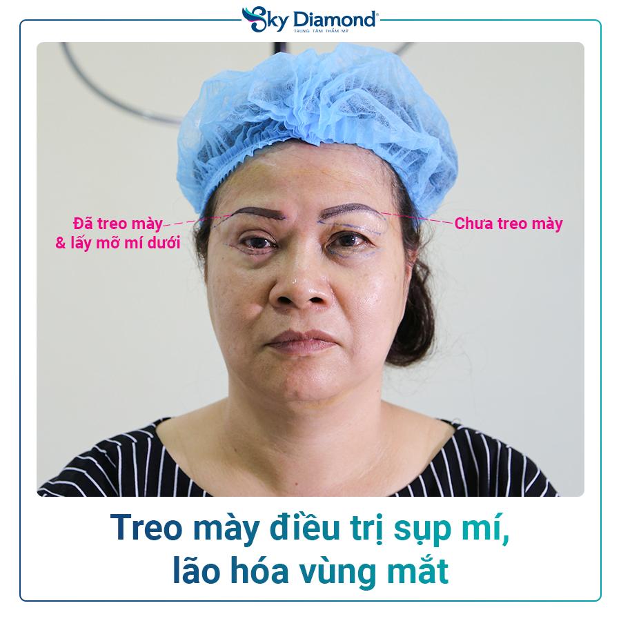 eo-may-dieu-tri-sup-mi-&-lao-hoa-vung-mat