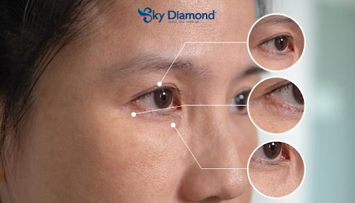 Treo mày giúp khắc phục các lão hóa của vùng mắt như sụp mí, vết chân chim