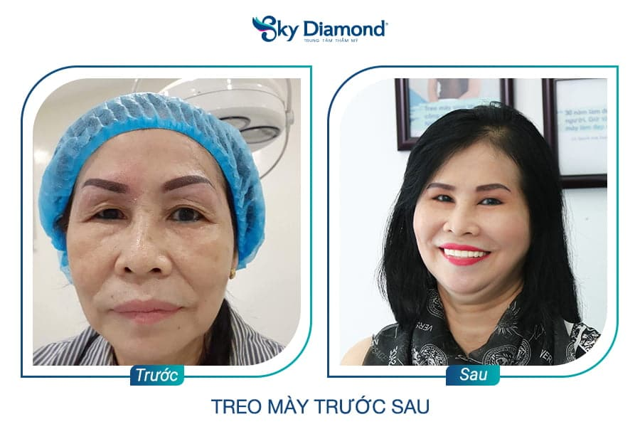 Sky Diamond Treo Mày
