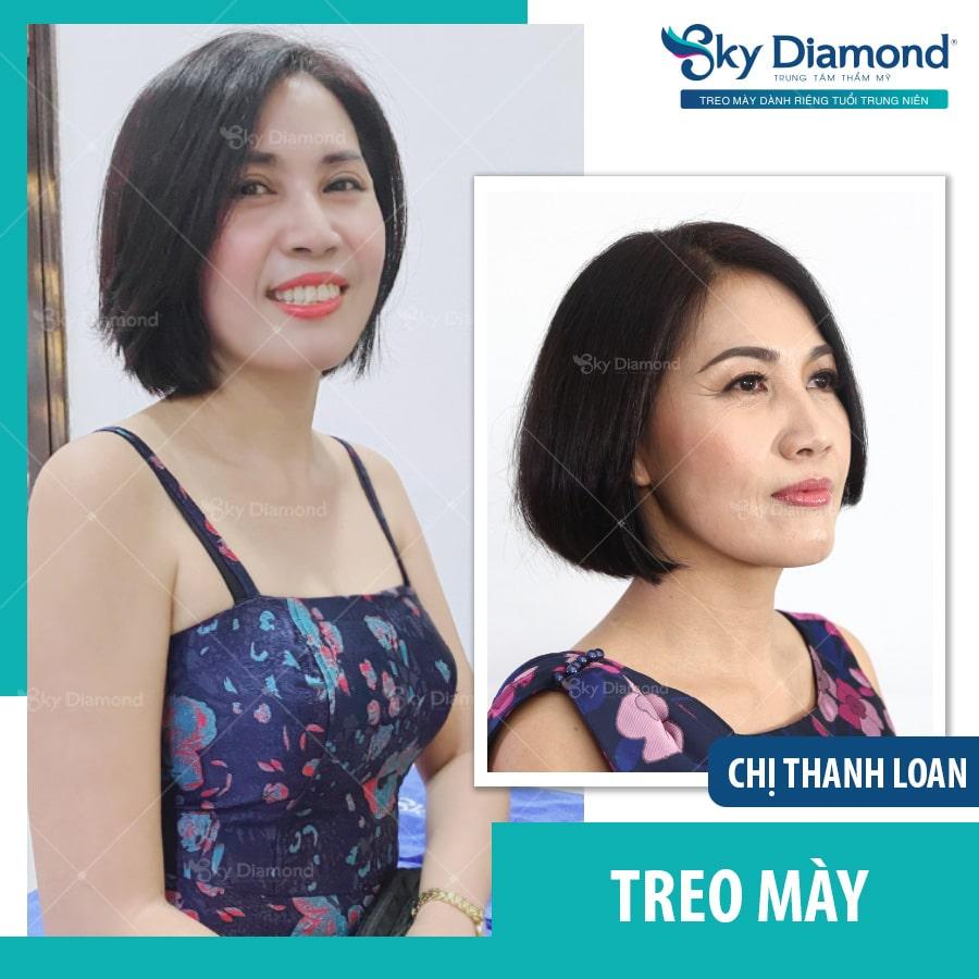 Treo-may-chi-thanh-loan