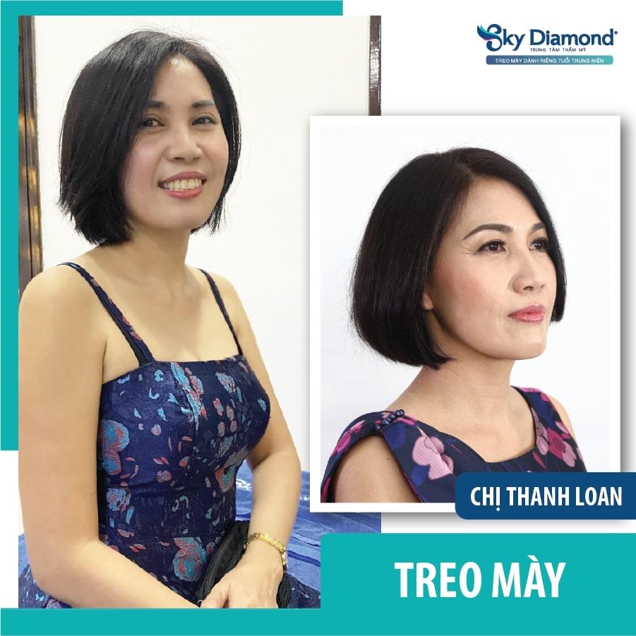 treo_may_don_Tet